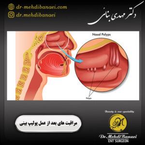 مراقبت های بعد از عمل پولیپ بینی