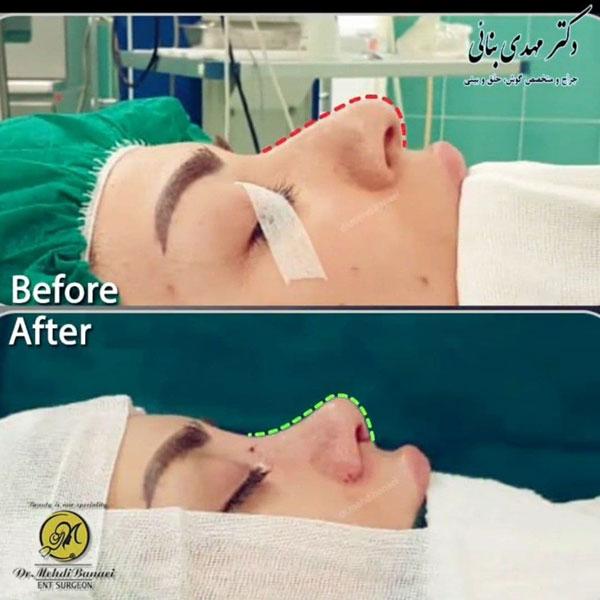 جراحی بینی ارومیه
