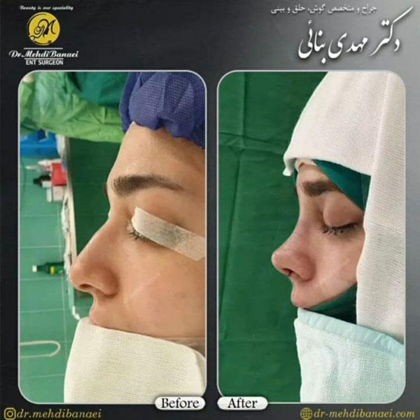 جراح بینی ارومیه